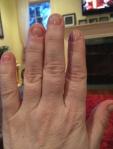 Nail biting blog - week 2